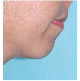 neck2a