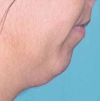 neck2b
