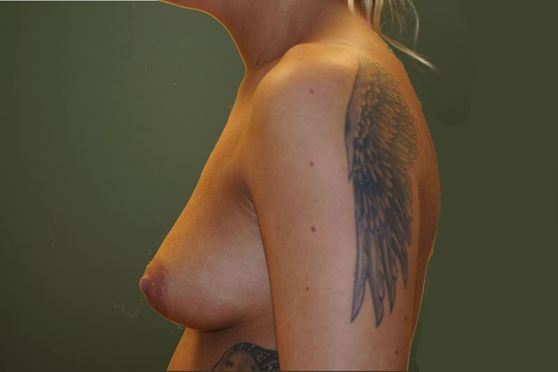 Breast Augmentation 1 new