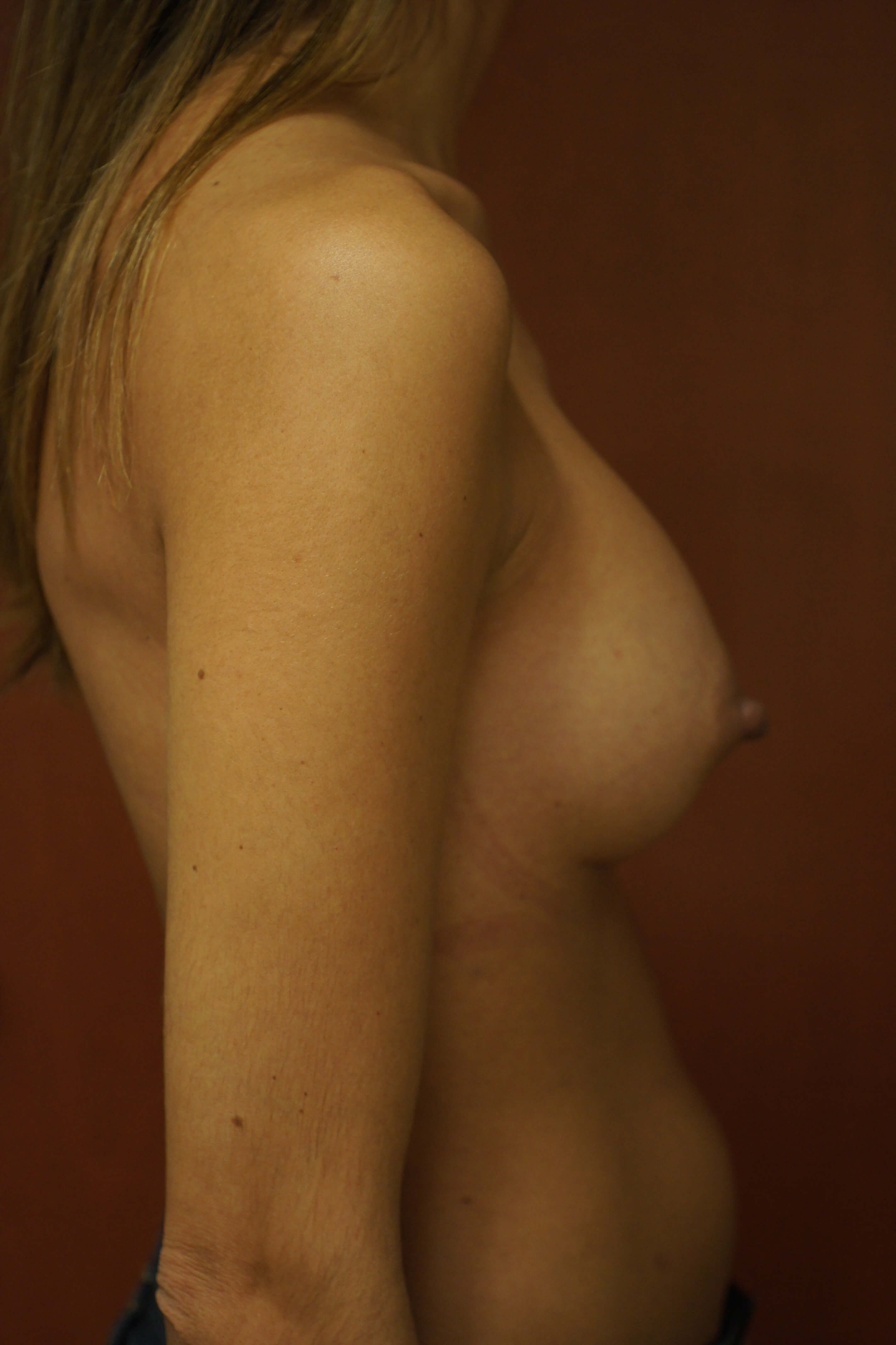 breast-augmentation-after 4