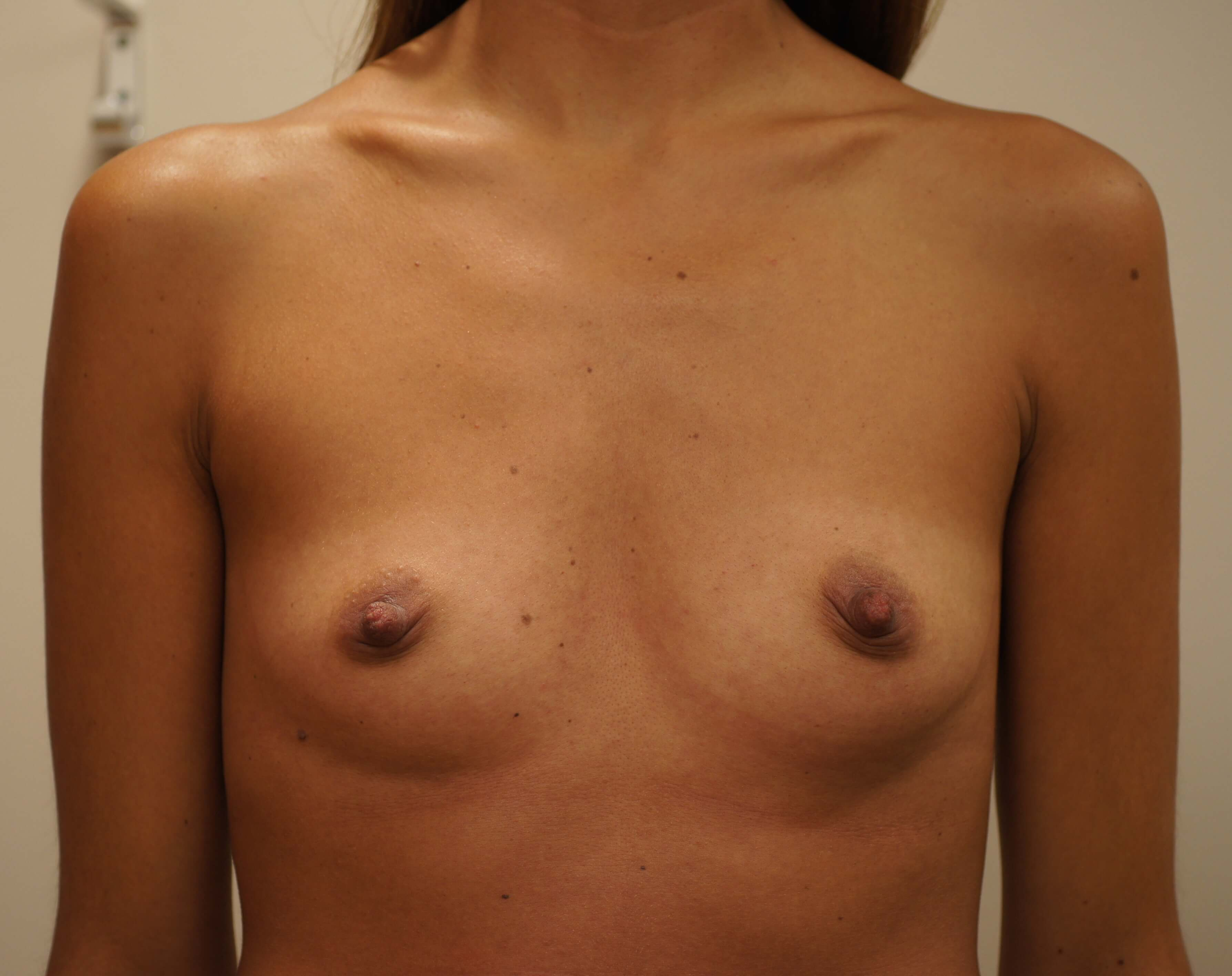 breast-augmentation-before1-1