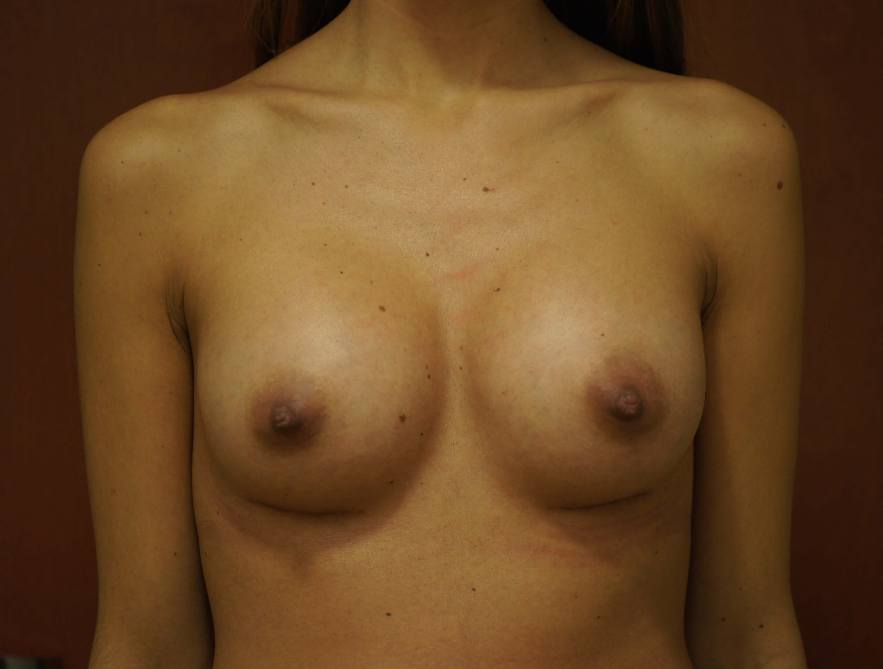 breastlift-after 1