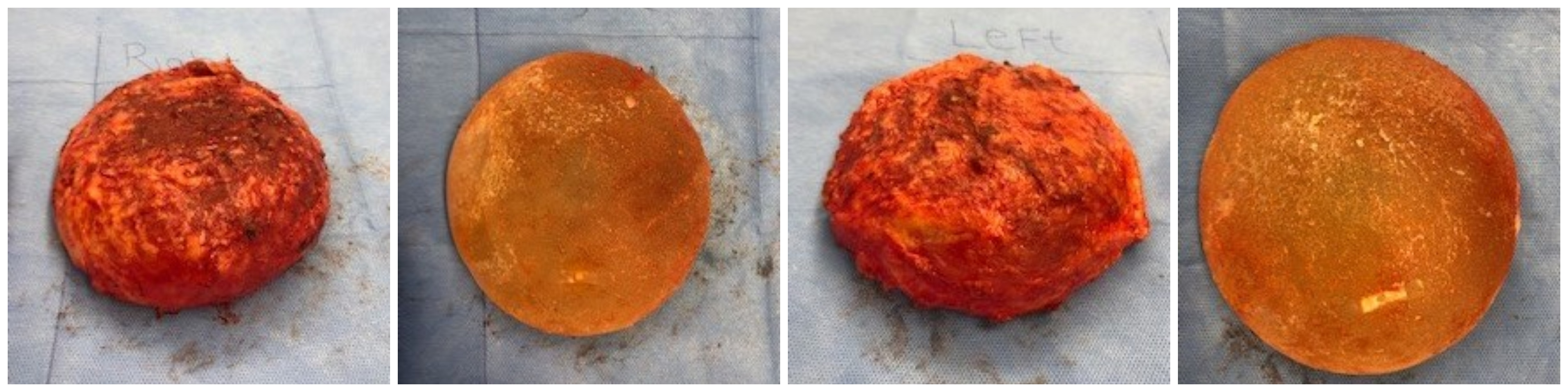 Breast Implant Removal Via En Bloc